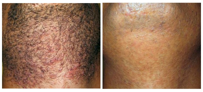 Laser Hair Removal Philadelphia About Face Skincare