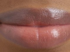 If you have dark lips try these 2 natural remedies