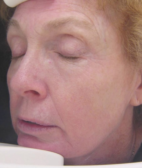 After-Fractional Skin Resurfacing
