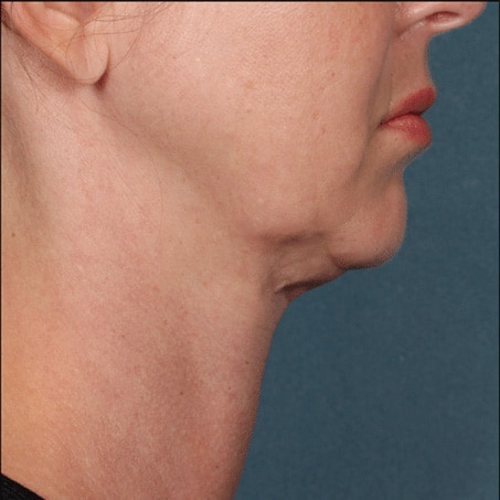 Before- Kybella (Side Views)