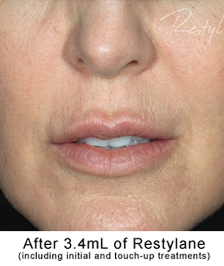 After-Restylane