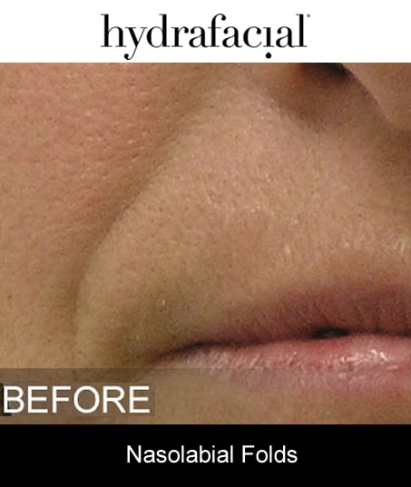 Before-Hydrafacial - Nasolabial Folds