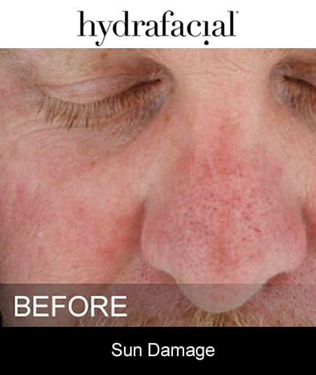 Before-Hydrafacial - Sun Damage
