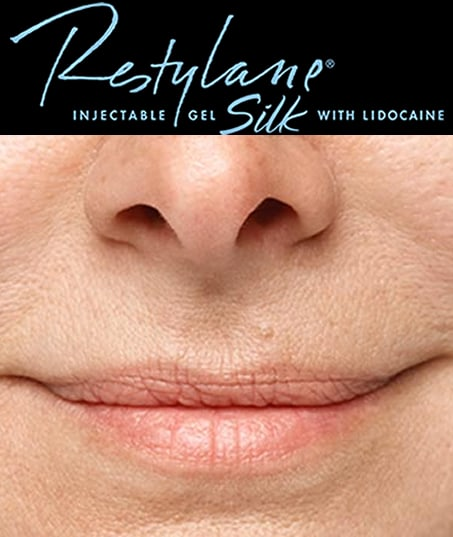 Before-Restylane Silk