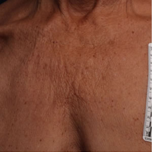 Before-Ultherapy Chest