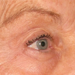 After-Ultherapy Brow