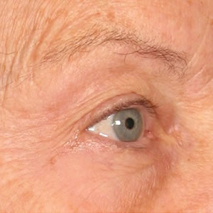 Before-Ultherapy Brow
