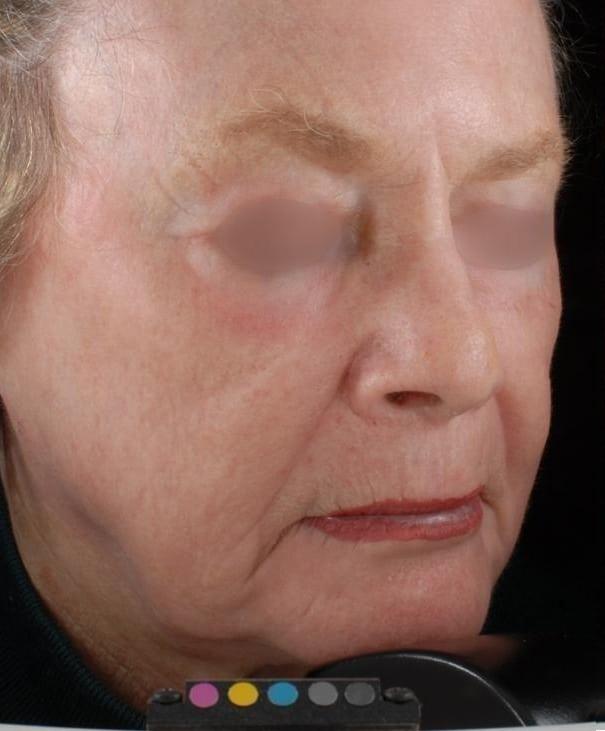 After-Factional Skin Resurfacing