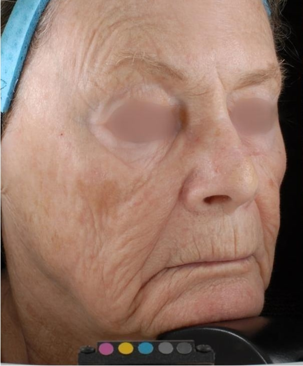 Before-Factional Skin Resurfacing
