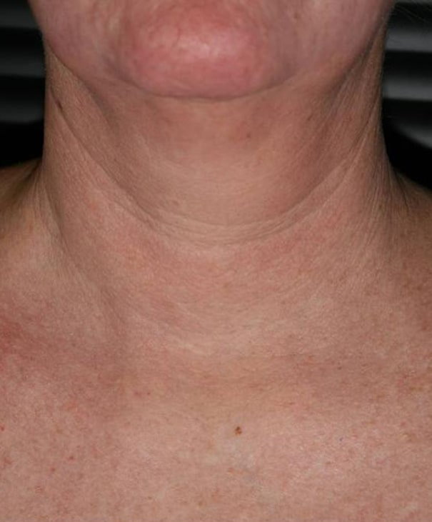 After- Fractional Skin Resurfacing