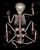 Bambina con 8 arti scheletro