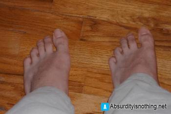 Gli innestano la protesi sbagliata - uomo si ritrova con due piedi sinistri