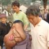 Huang Chuncai - L'uomo Elefante Cinese
