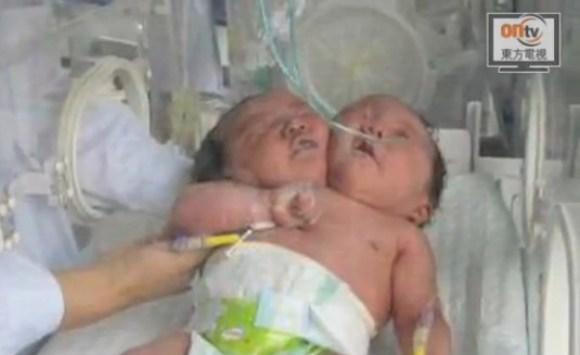 Bimba nasce con due teste