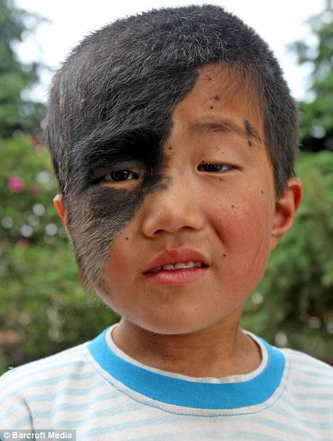 An Qi, il bambino con la maschera di capelli sul volto ...