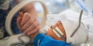 ولادة طفل قبل ثلاثة أشهر من موعده