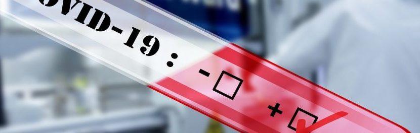 André Vacheron : L'intérêt des tests de dépistage du coronavirus