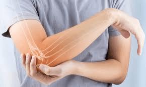 Tennis Elbow (AKA lateral epicondylalgia)