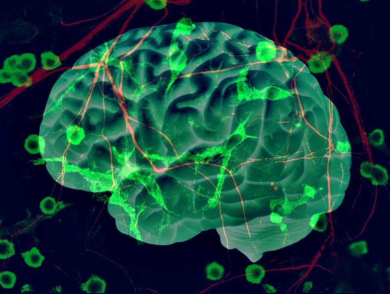 cerebro conexiones neuronales del autismo