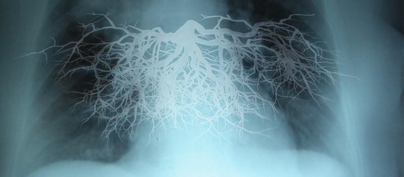 """La canción """"Respira conmigo"""" crea conciencia sobre la """"Medicina de precisión"""" de la fibrosis quística"""