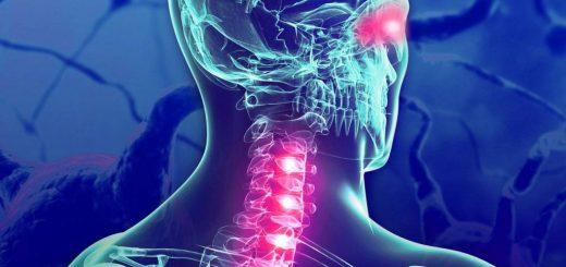 neuromielitis óptica