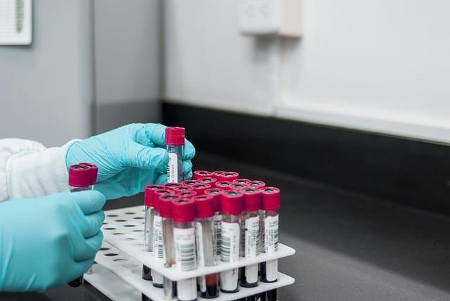 ensayo de linfoma cutáneo de células T