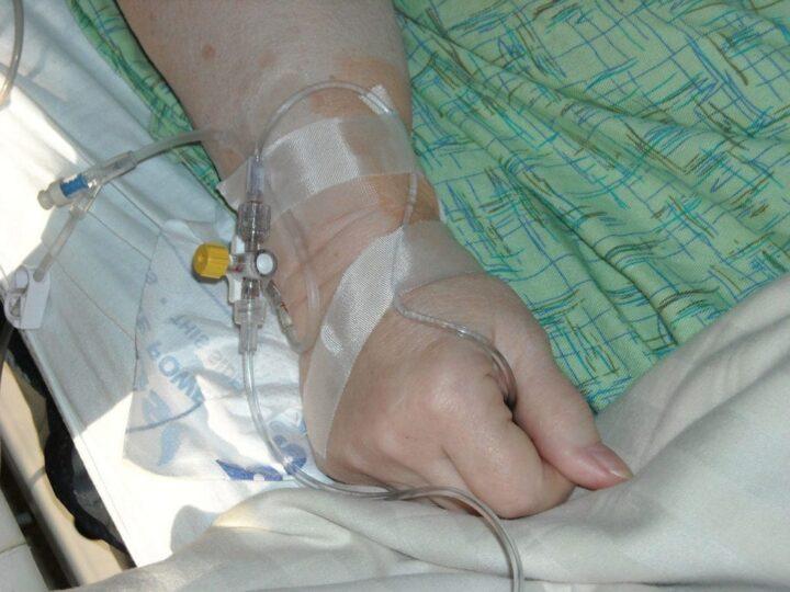 Secukinumab eficaz para tratar la artritis idiopática juvenil