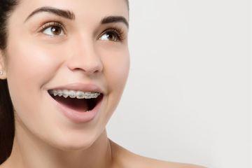 Prostowanie zębów – co warto wiedzieć?