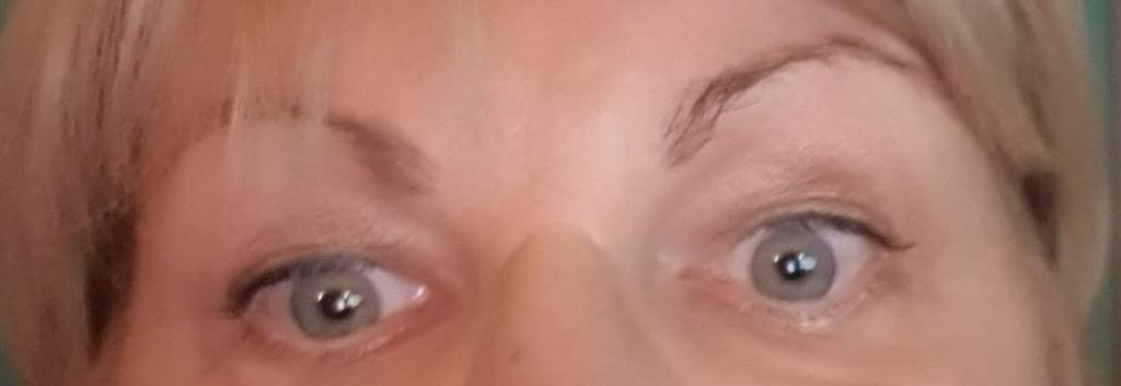 My eyes, the left one drooping