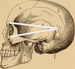 Skull with lines from eye socket