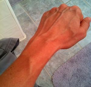 arm veins