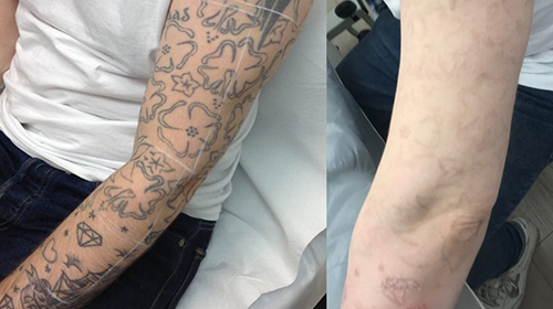 before and after tattoo sleeve using laser tattoo removal