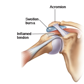 Shoulder Soft Tissue Damage