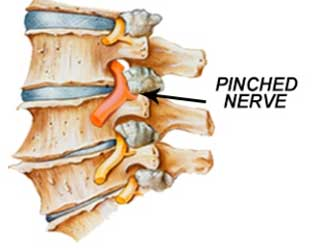Pinched Nerves caused by car accidents