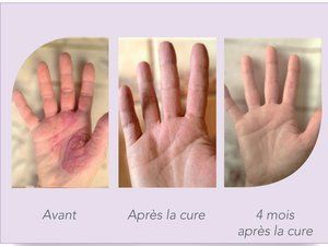 PSORIASIS et POST-CANCER