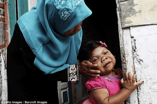 Astaga! Gadis Aceh Berusia 24 Tahun Ini Terlihat Seperti Balita
