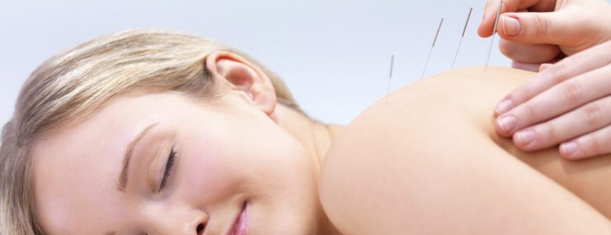 ACMAC clinic acupuncture-treatment-norwich
