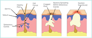 Acne Explained | acneafterthirty