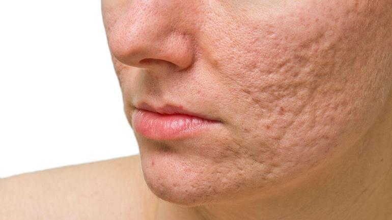cara con marcas y cicatrices de acne