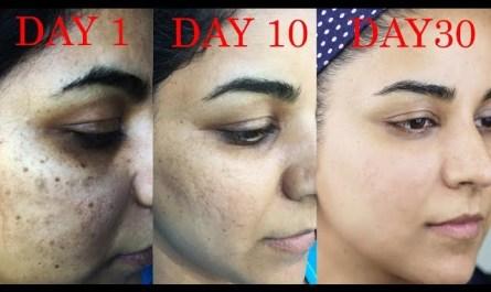 sddefault - How I Got Rid of Dark Scars, Hyperpigmentation, Pimples/Acne