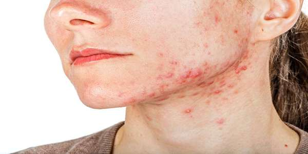 Acne Cyst: Here Is How to Get Rid of It [Complete Guide]