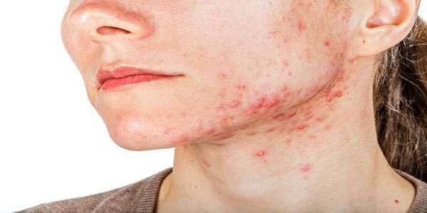 acne cyst