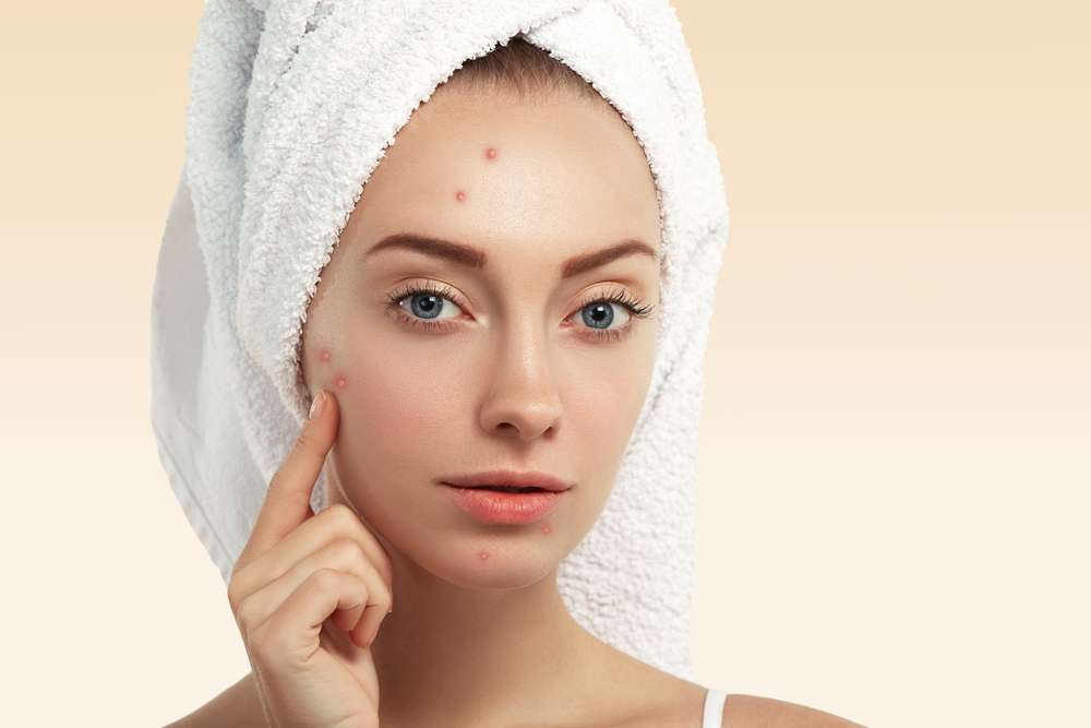 nodular acne pictures
