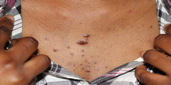 Papules pictures