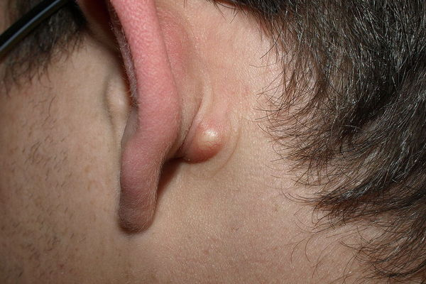 how to get rid of a cyst at home