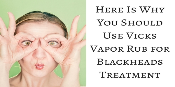Vicks Vapor Rub for Blackheads: Here Is Why You Should Use It