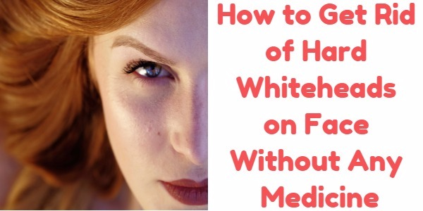 How to Get Rid of Hard Whiteheads on Face Without Any Medicine