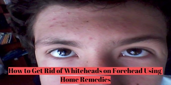 How to Get Rid of Whiteheads on Forehead [Home Remedies]
