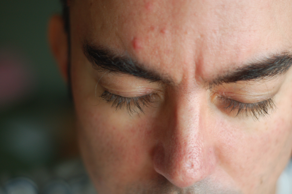 forehead pimples