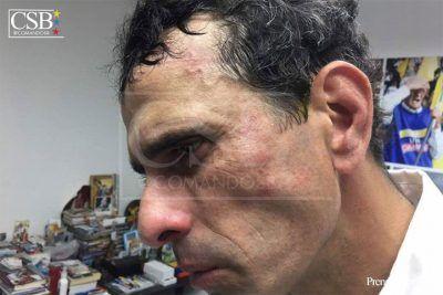 Golpeado por la Guardia Nacional gobernador Henrique Capriles durante manifestación en Caracas